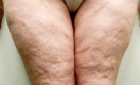 nogi-przed-2
